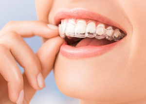 Invisalign Dentists in Blackfalds   Dentists in Red Deer   Dentists in Lacombe